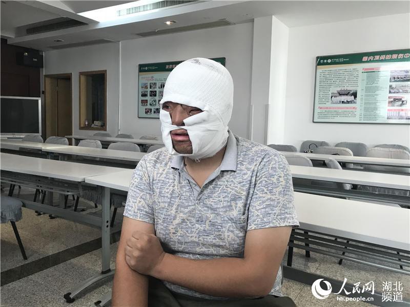 """面部严重烧伤被遗弃 24岁小伙在武汉成功""""换脸"""""""