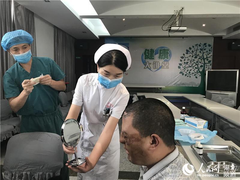 """面部严重烧伤被遗弃 24岁小伙在武汉成功""""换脸""""【4】"""